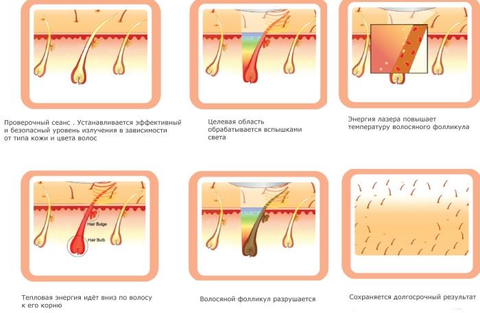 Диодная лазерная эпиляция. Аппараты для процедуры, подготовка, как работает лазер. Отзывы, фото до и после